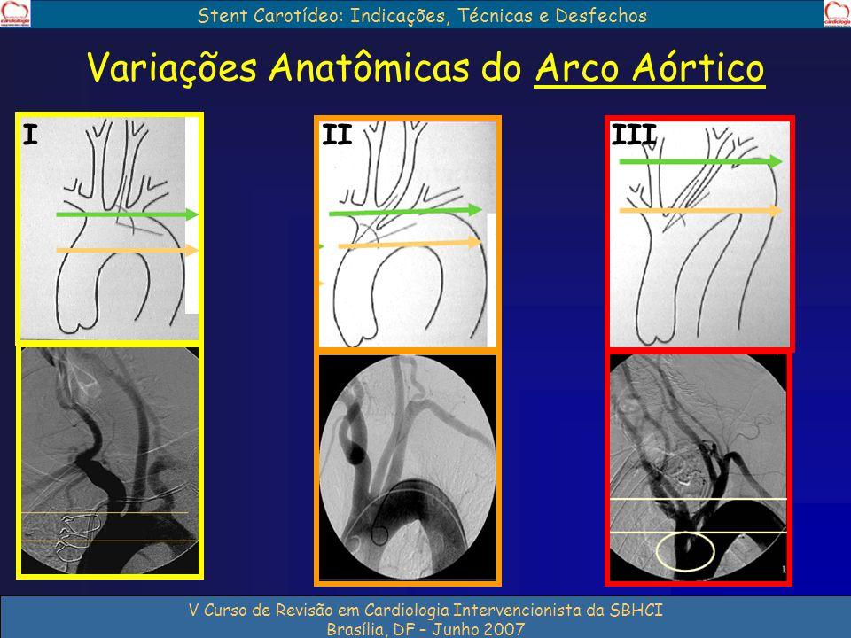 Stent Carotídeo: Indicações, Técnicas e Desfechos V Curso de Revisão em Cardiologia Intervencionista da SBHCI Brasília, DF – Junho 2007 Variações Anat