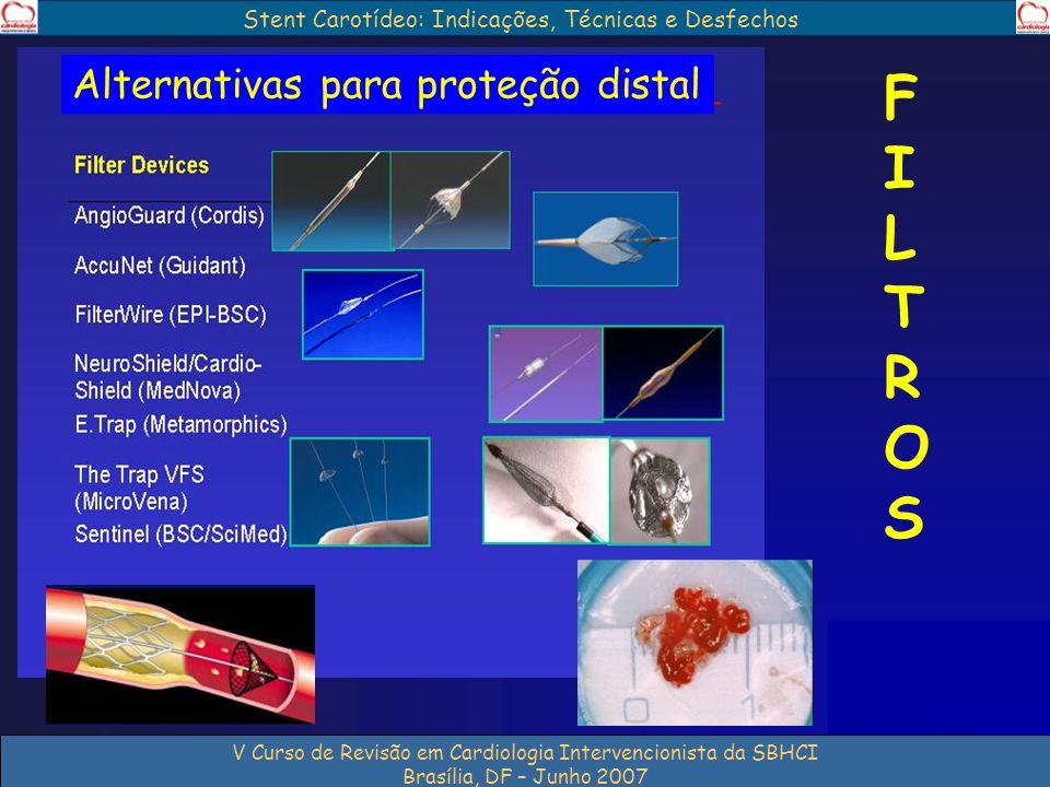 Stent Carotídeo: Indicações, Técnicas e Desfechos V Curso de Revisão em Cardiologia Intervencionista da SBHCI Brasília, DF – Junho 2007 FILTROSFILTROS