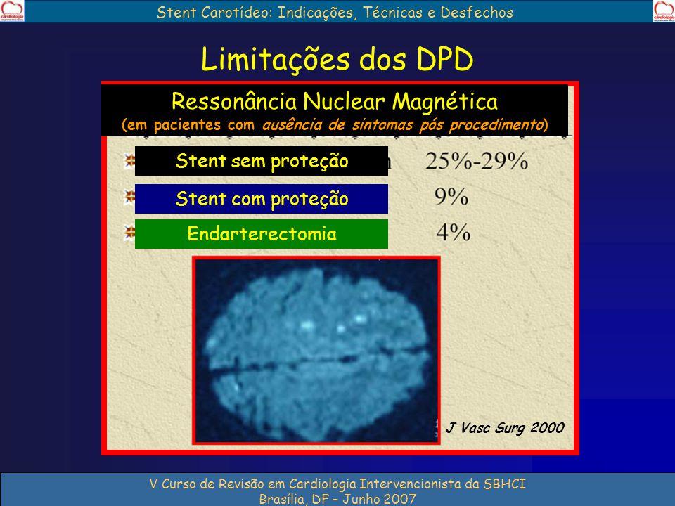 Stent Carotídeo: Indicações, Técnicas e Desfechos V Curso de Revisão em Cardiologia Intervencionista da SBHCI Brasília, DF – Junho 2007 Limitações dos