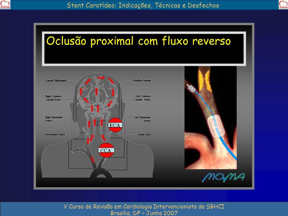 Stent Carotídeo: Indicações, Técnicas e Desfechos V Curso de Revisão em Cardiologia Intervencionista da SBHCI Brasília, DF – Junho 2007 Oclusão proxim