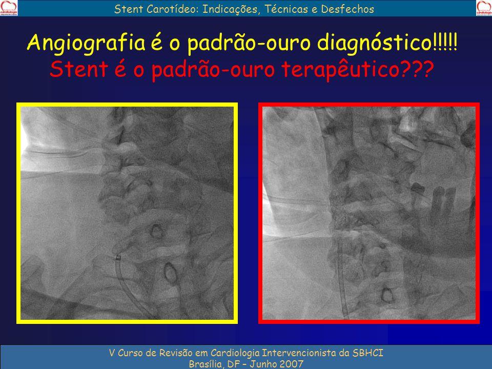 Stent Carotídeo: Indicações, Técnicas e Desfechos V Curso de Revisão em Cardiologia Intervencionista da SBHCI Brasília, DF – Junho 2007 Angiografia é