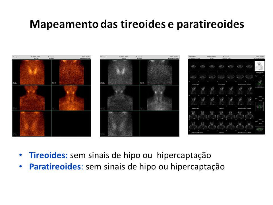 Mapeamento das tireoides e paratireoides Tireoides: sem sinais de hipo ou hipercaptação Paratireoides: sem sinais de hipo ou hipercaptação