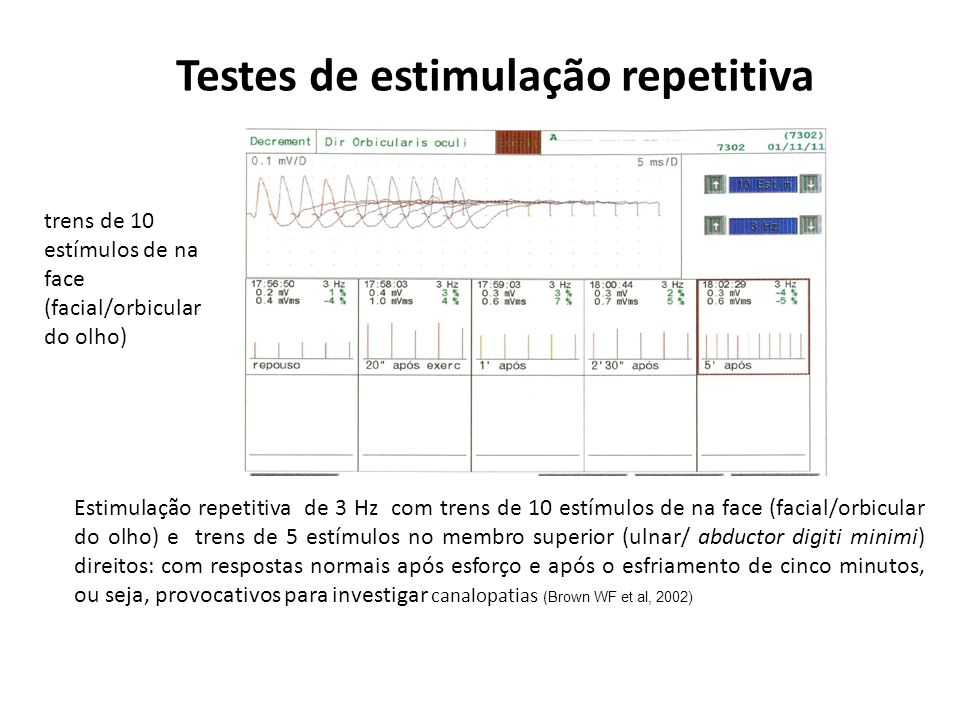 Testes de estimulação repetitiva Somente a estimulação repetitiva com freqüências de 20 Hz se observou decremento com reduções de 30 a 60% das amplitudes no ulnar/ abductor digiti minimi, Fig.1.