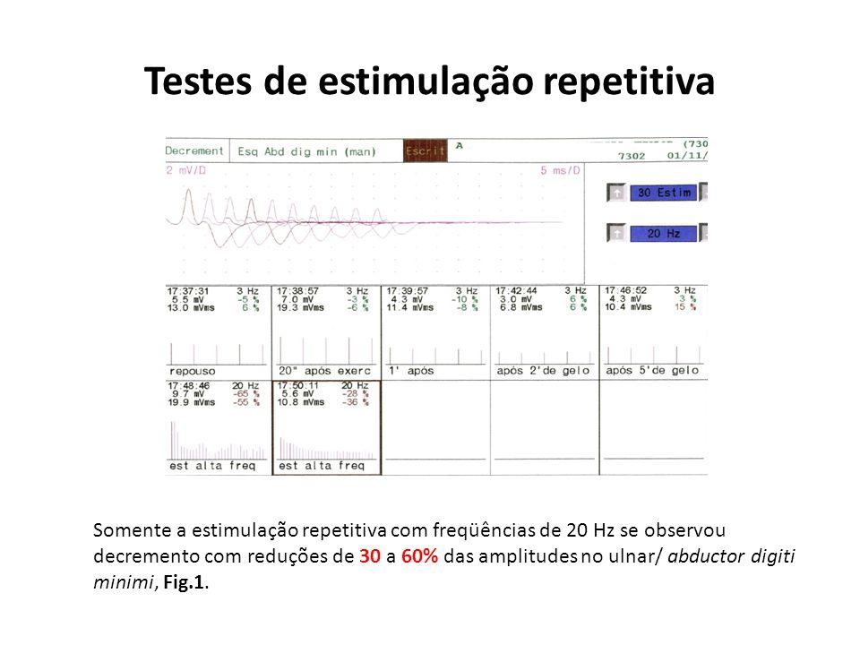 Testes de estimulação repetitiva Somente a estimulação repetitiva com freqüências de 20 Hz se observou decremento com reduções de 30 a 60% das amplitu