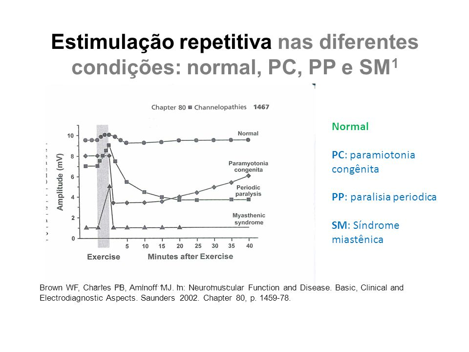 Estimulação repetitiva nas diferentes condições: normal, PC, PP e SM 1 Brown WF, Charles FB, Aminoff MJ. In: Neuromuscular Function and Disease. Basic
