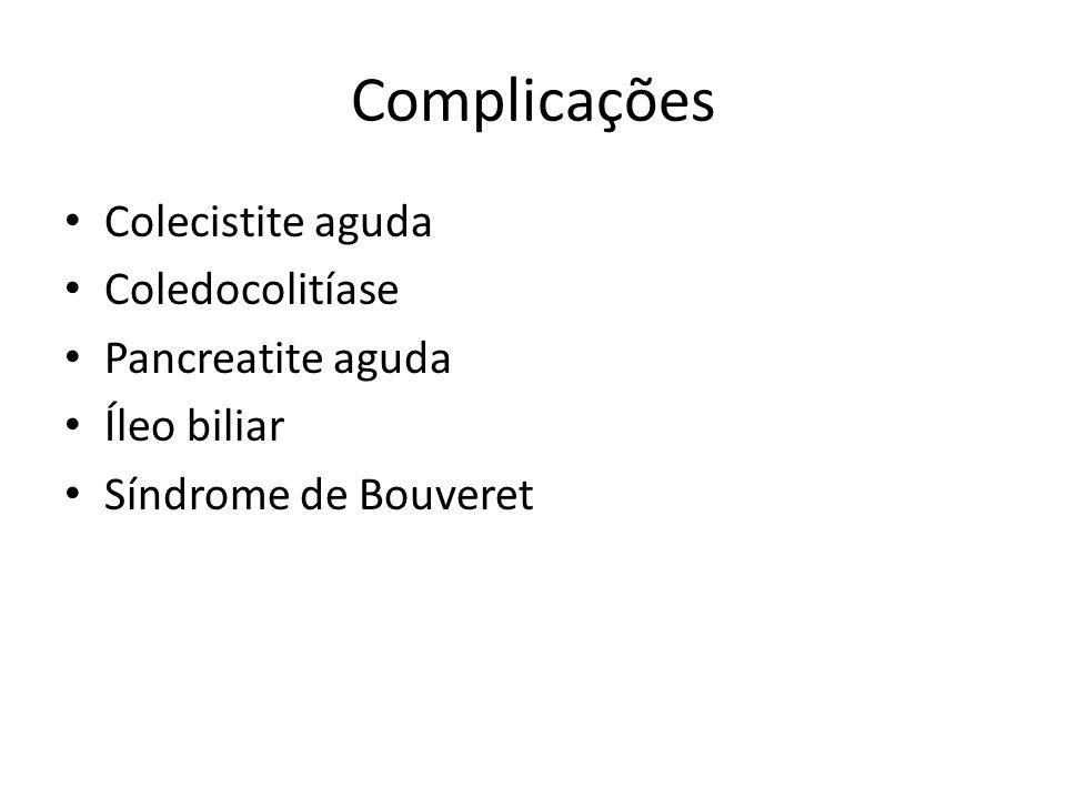 Complicações Colecistite aguda Coledocolitíase Pancreatite aguda Íleo biliar Síndrome de Bouveret
