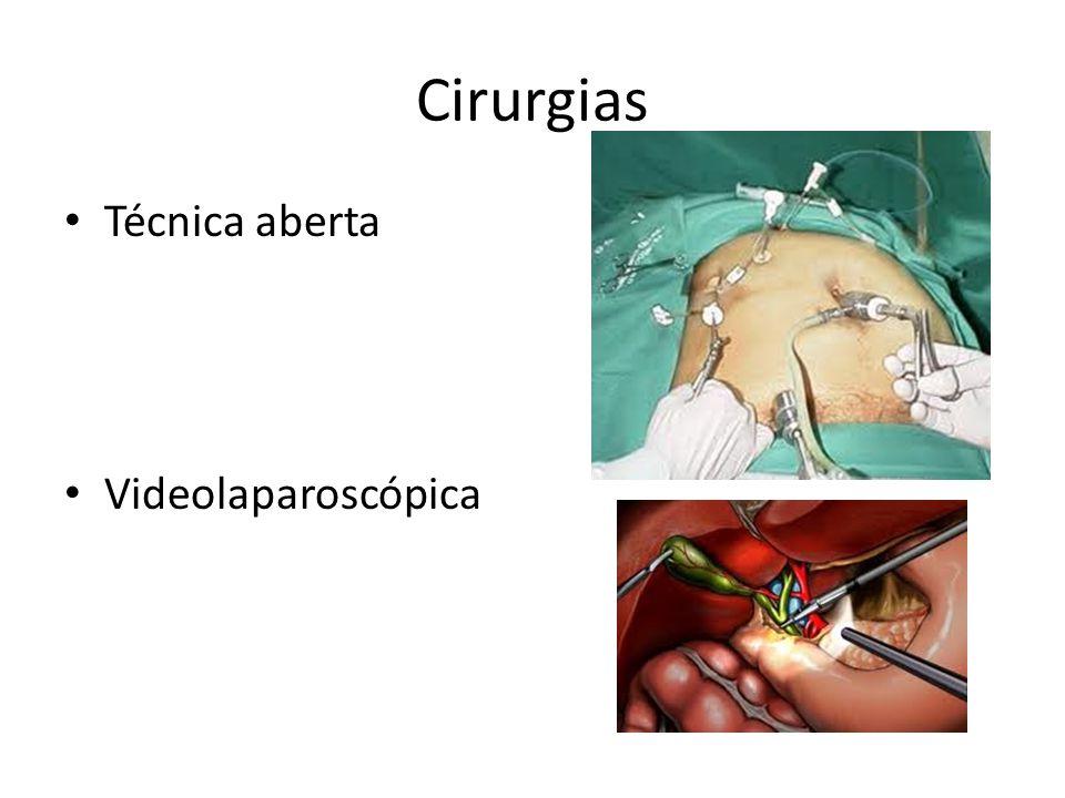 Cirurgias Técnica aberta Videolaparoscópica