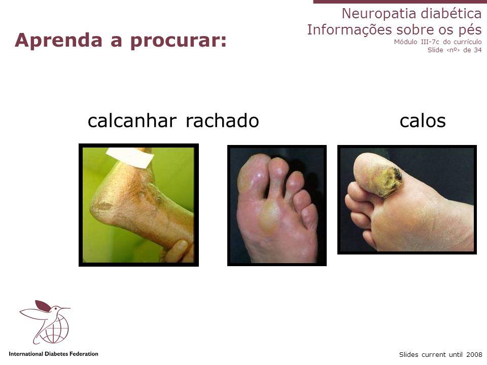 Neuropatia diabética Informações sobre os pés Módulo III-7c do currículo Slide nº de 34 Slides current until 2008 Aprenda a procurar: Dedos em martelo Dedos em garra