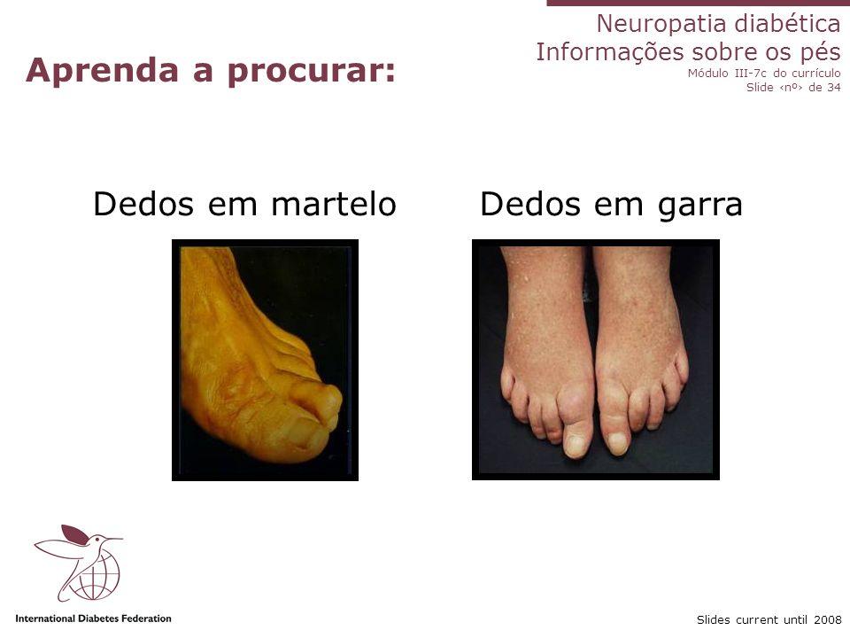 Neuropatia diabética Informações sobre os pés Módulo III-7c do currículo Slide nº de 34 Slides current until 2008 Aprenda a procurar: Dedos em martelo