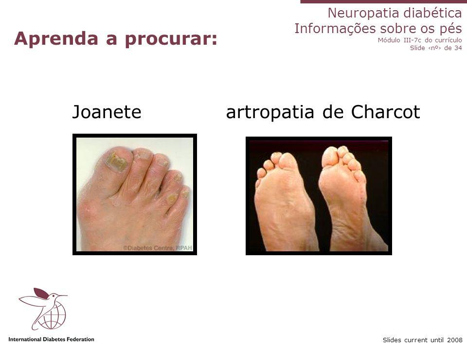 Neuropatia diabética Informações sobre os pés Módulo III-7c do currículo Slide nº de 34 Slides current until 2008 Aprenda a procurar: Joanete artropat