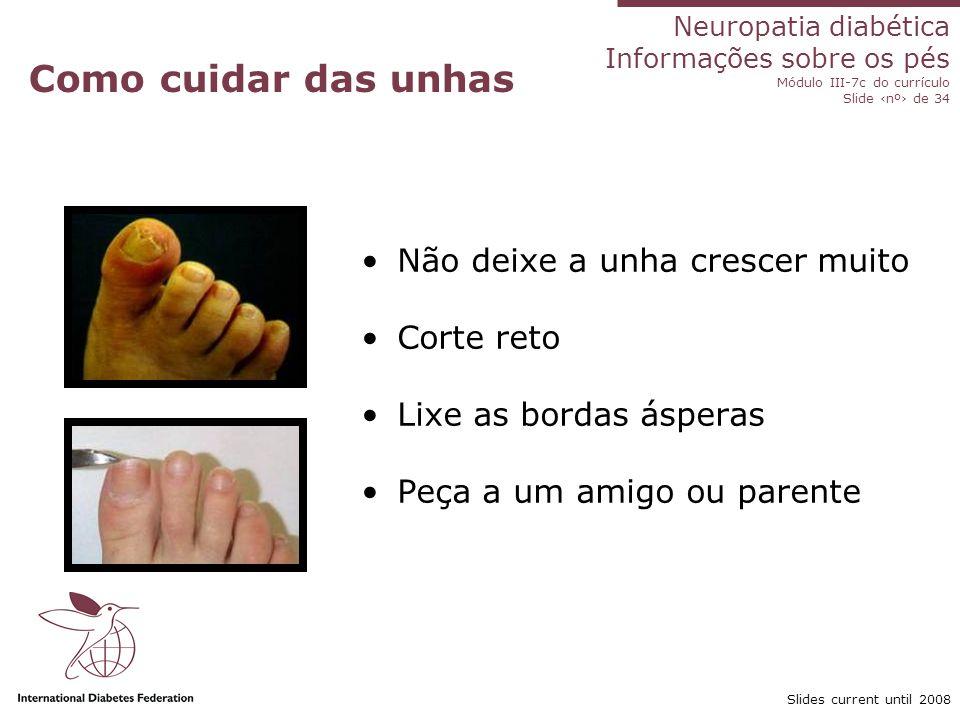 Neuropatia diabética Informações sobre os pés Módulo III-7c do currículo Slide nº de 34 Slides current until 2008 Como tratar a tinha Loção anti-fungicida entre os dedos Creme anti-fungicida no pé Trate a área afetada e a pele ao redor