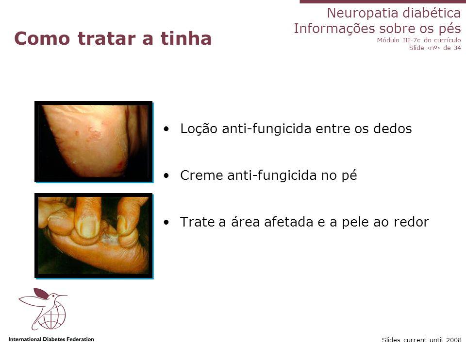 Neuropatia diabética Informações sobre os pés Módulo III-7c do currículo Slide nº de 34 Slides current until 2008 O que fazer com o fungo nas unhas Difícil de ser tratado Unhas grossas devem ser lixadas