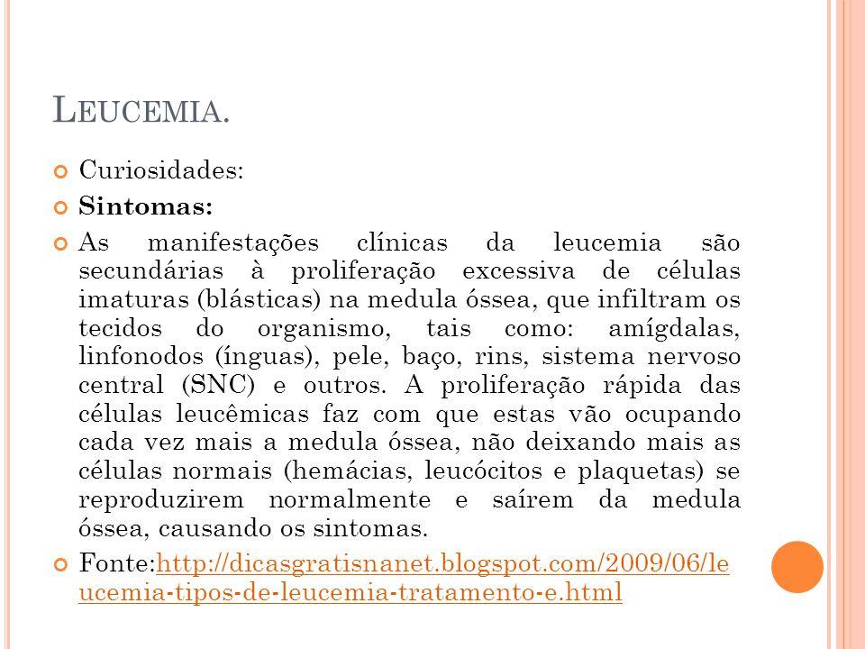 L EUCEMIA. Curiosidades: Sintomas: As manifestações clínicas da leucemia são secundárias à proliferação excessiva de células imaturas (blásticas) na m