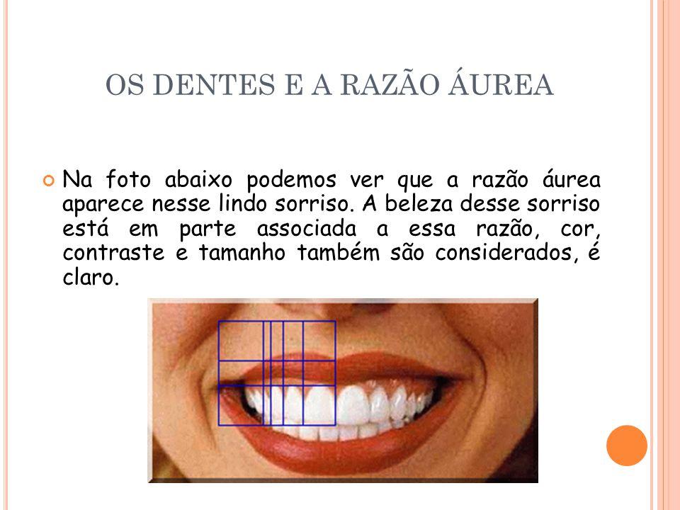 OS DENTES E A RAZÃO ÁUREA Na foto abaixo podemos ver que a razão áurea aparece nesse lindo sorriso. A beleza desse sorriso está em parte associada a e