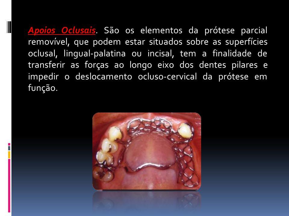Apoios Oclusais Apoios Oclusais. São os elementos da prótese parcial removível, que podem estar situados sobre as superfícies oclusal, lingual-palatin