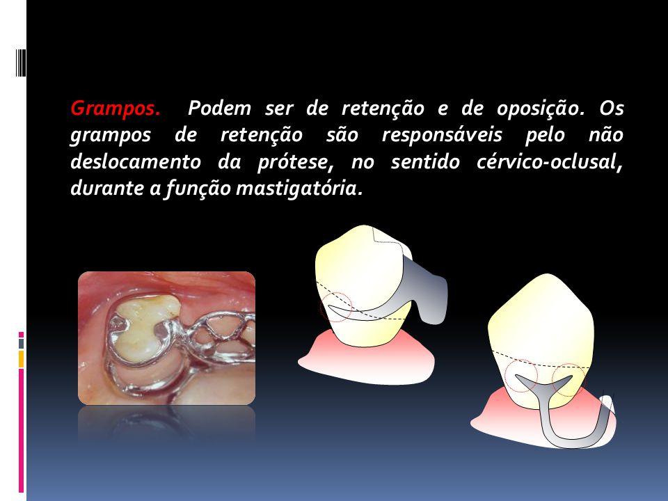 Grampos. Podem ser de retenção e de oposição. Os grampos de retenção são responsáveis pelo não deslocamento da prótese, no sentido cérvico-oclusal, du
