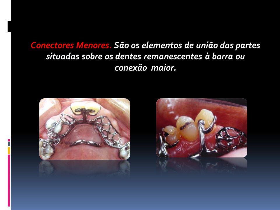 Conectores Menores. São os elementos de união das partes situadas sobre os dentes remanescentes à barra ou conexão maior.