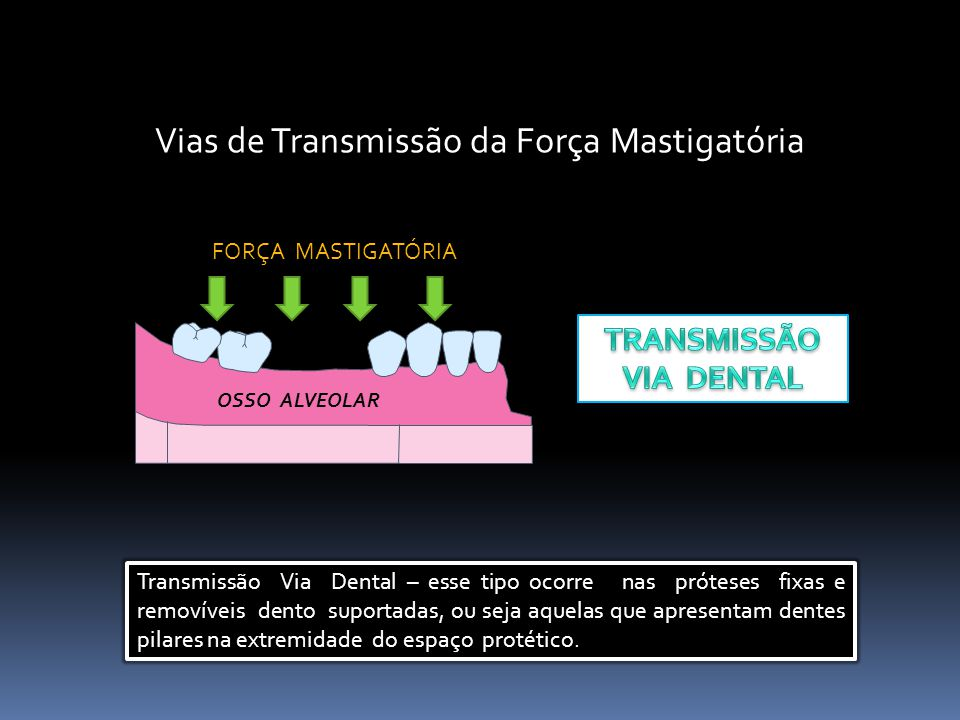Vias de Transmissão da Força Mastigatória OSSO ALVEOLAR FORÇA MASTIGATÓRIA Transmissão Via Dental – esse tipo ocorre nas próteses fixas e removíveis dento suportadas, ou seja aquelas que apresentam dentes pilares na extremidade do espaço protético.