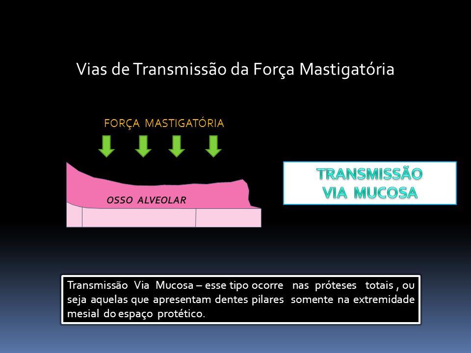 Vias de Transmissão da Força Mastigatória OSSO ALVEOLAR FORÇA MASTIGATÓRIA Transmissão Via Mucosa – esse tipo ocorre nas próteses totais, ou seja aque