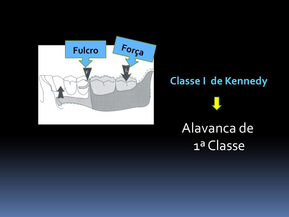 Fulcro Força Classe I de Kennedy Alavanca de 1ª Classe
