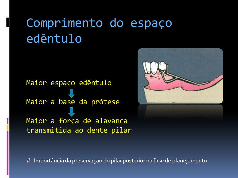 Comprimento do espaço edêntulo Maior espaço edêntulo Maior a base da prótese Maior a força de alavanca transmitida ao dente pilar # Importância da preservação do pilar posterior na fase de planejamento.
