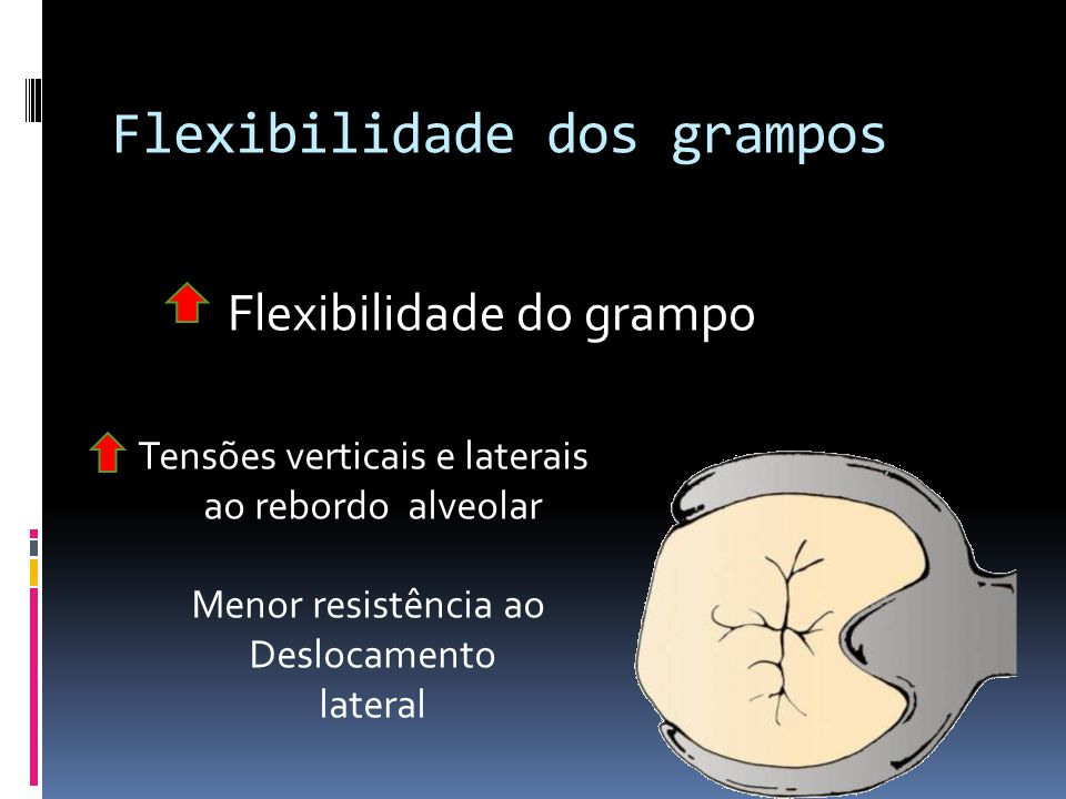 Flexibilidade dos grampos Flexibilidade do grampo Tensões verticais e laterais ao rebordo alveolar Menor resistência ao Deslocamento lateral
