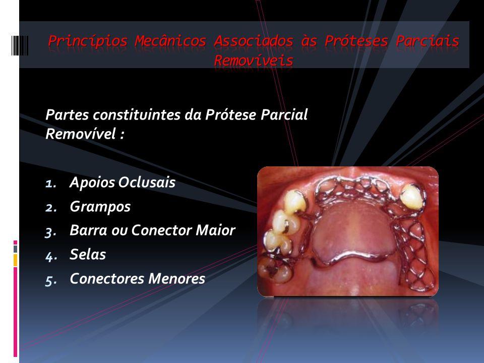 Partes constituintes da Prótese Parcial Removível : 1. Apoios Oclusais 2. Grampos 3. Barra ou Conector Maior 4. Selas 5. Conectores Menores