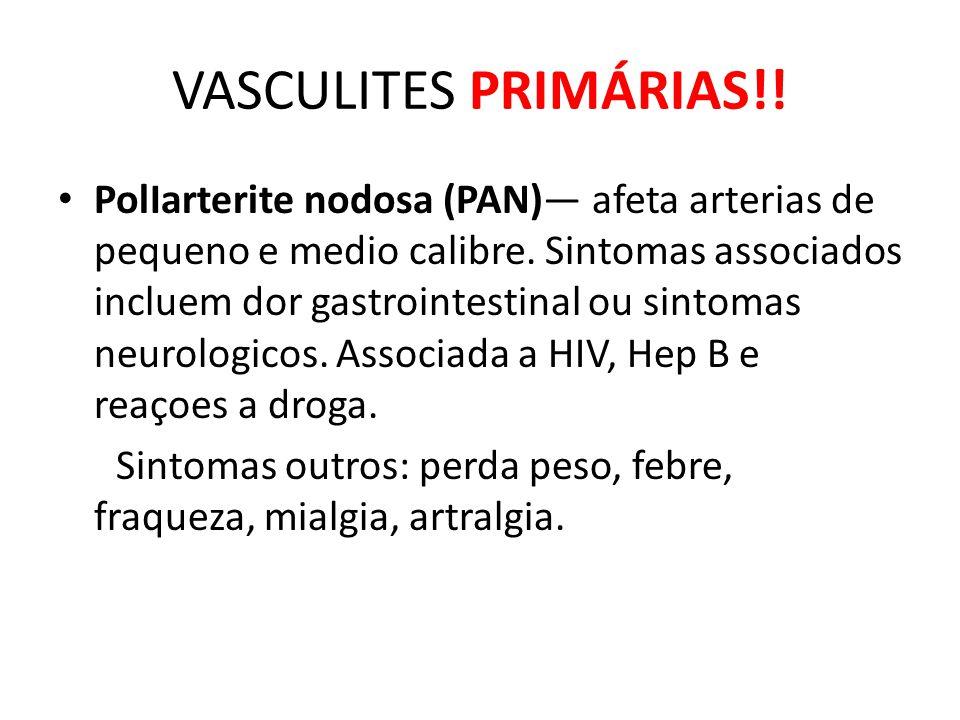 VASCULITES PRIMÁRIAS!.PolIarterite nodosa (PAN) afeta arterias de pequeno e medio calibre.