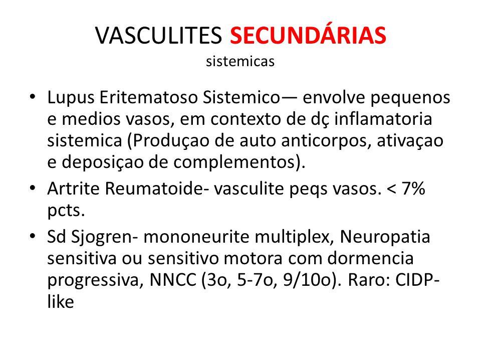 VASCULITES SECUNDÁRIAS sistemicas Lupus Eritematoso Sistemico envolve pequenos e medios vasos, em contexto de dç inflamatoria sistemica (Produçao de auto anticorpos, ativaçao e deposiçao de complementos).