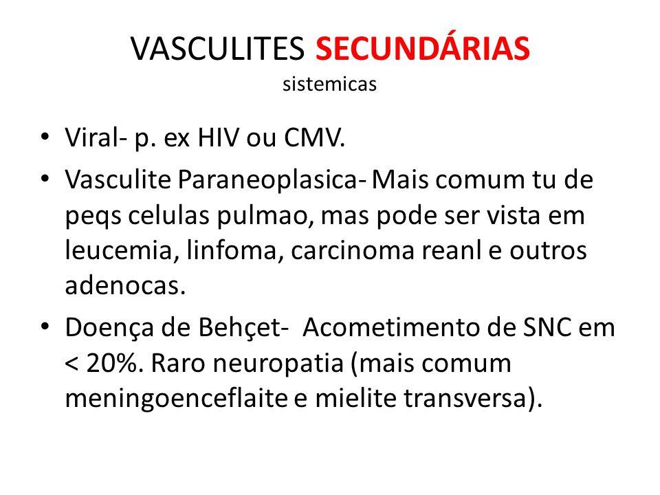 VASCULITES SECUNDÁRIAS sistemicas Viral- p.ex HIV ou CMV.