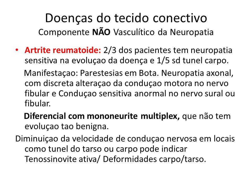 Doenças do tecido conectivo Componente NÃO Vasculítico da Neuropatia Sindrome de Sjogren: Incidencia de Neuropatia entre 10 e 60%.