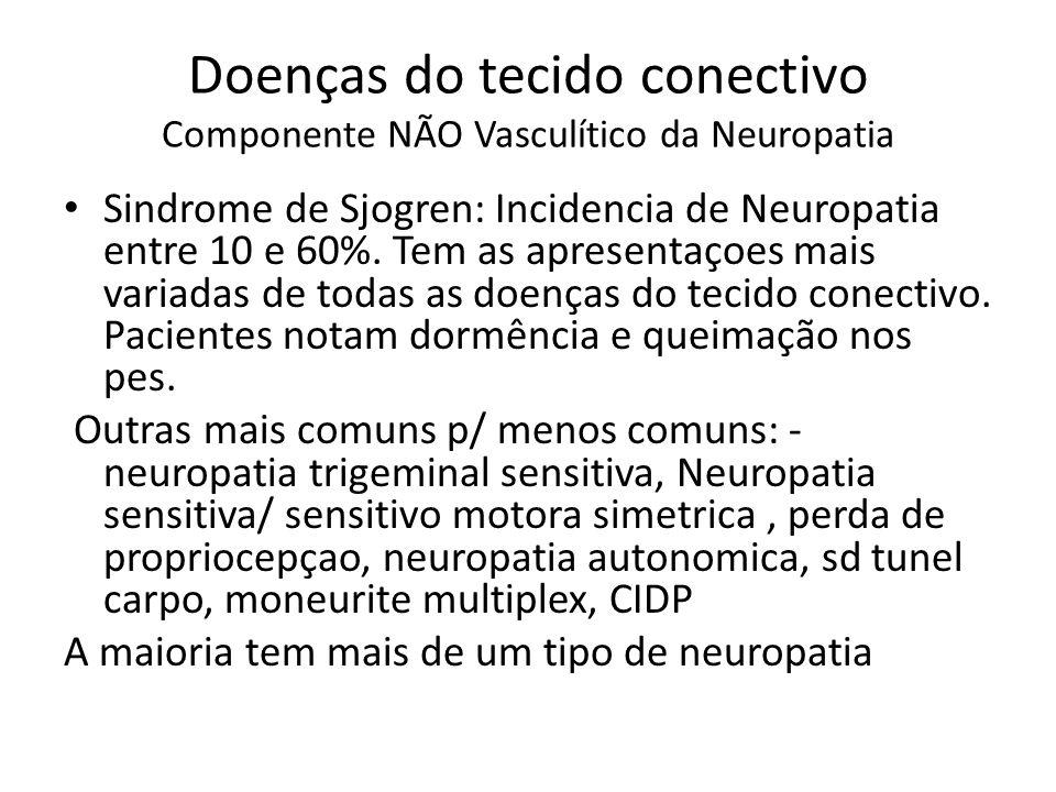Sarcoidose Varios Padrao neuropatia: Polineuro axonal sensitivo motora, cronica,simetrica, distal; mononeurite multiplex vasculitica (incluindo NNCC- em geral 7o bilat) e Polineuro AIDP- like.