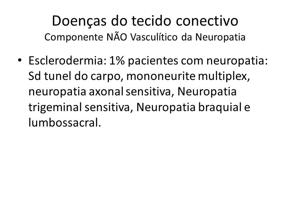 Doenças do tecido conectivo Componente NÃO Vasculítico da Neuropatia Esclerodermia: 1% pacientes com neuropatia: Sd tunel do carpo, mononeurite multiplex, neuropatia axonal sensitiva, Neuropatia trigeminal sensitiva, Neuropatia braquial e lumbossacral.