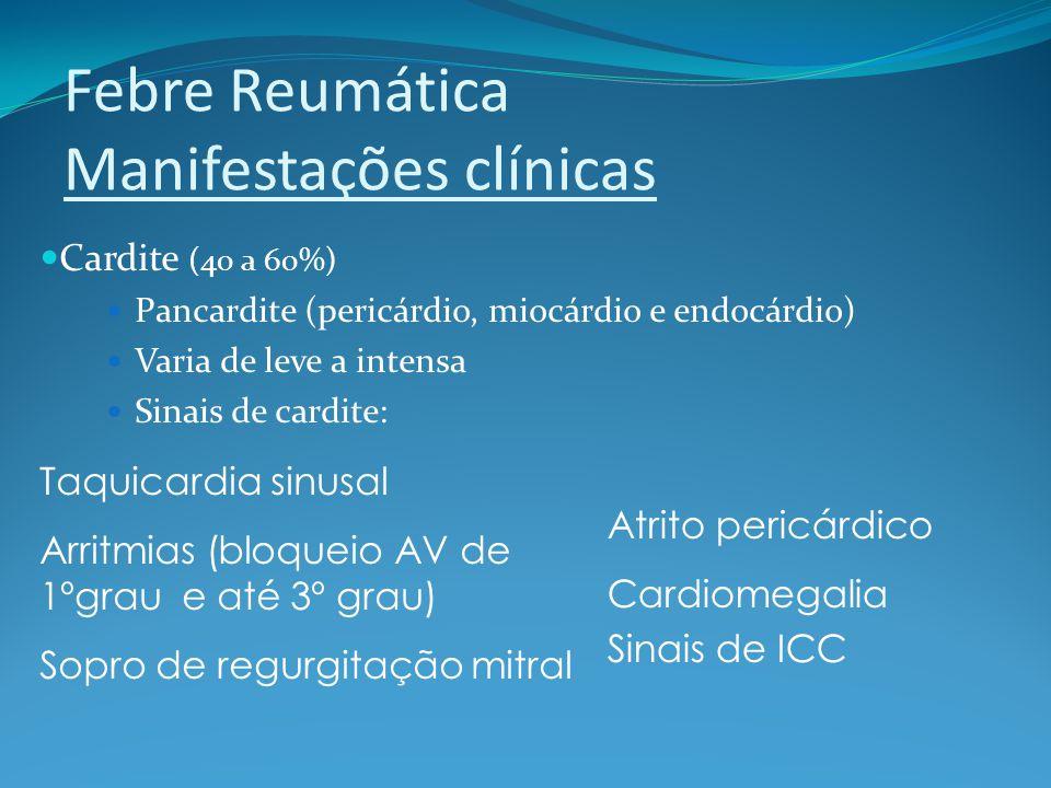Febre Reumática Manifestações clínicas Cardite (40 a 60%) Pancardite (pericárdio, miocárdio e endocárdio) Varia de leve a intensa Sinais de cardite: T