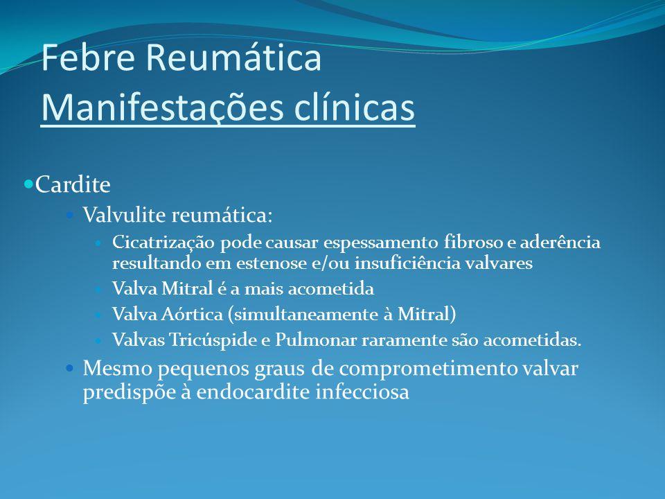 Febre Reumática Manifestações clínicas Cardite Valvulite reumática: Cicatrização pode causar espessamento fibroso e aderência resultando em estenose e