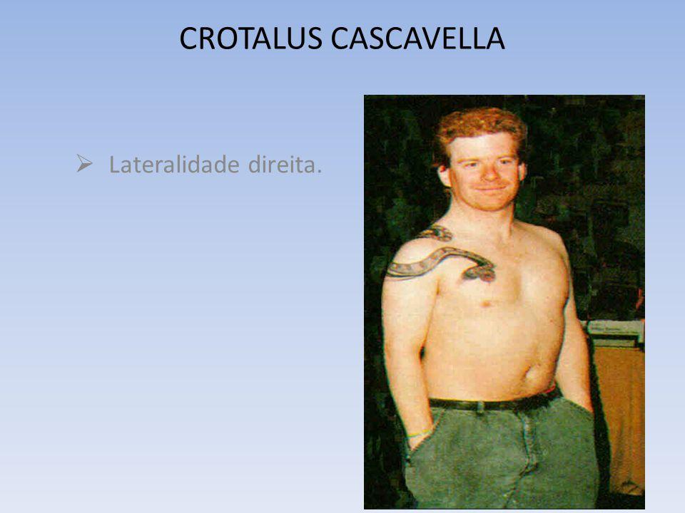 CROTALUS CASCAVELLA M.M.CLÍNICA (Vijnovsky) GERAIS Pior: à noite, pelo toque, por roupa apertada, depois de dormir.