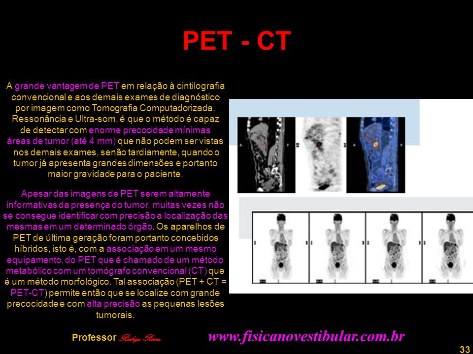 33 PET - CT A grande vantagem de PET em relação à cintilografia convencional e aos demais exames de diagnóstico por imagem como Tomografia Computadori