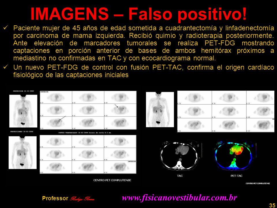 35 IMAGENS – Falso positivo! Paciente mujer de 45 años de edad sometida a cuadrantectomía y linfadenectomía por carcinoma de mama izquierda. Recibió q