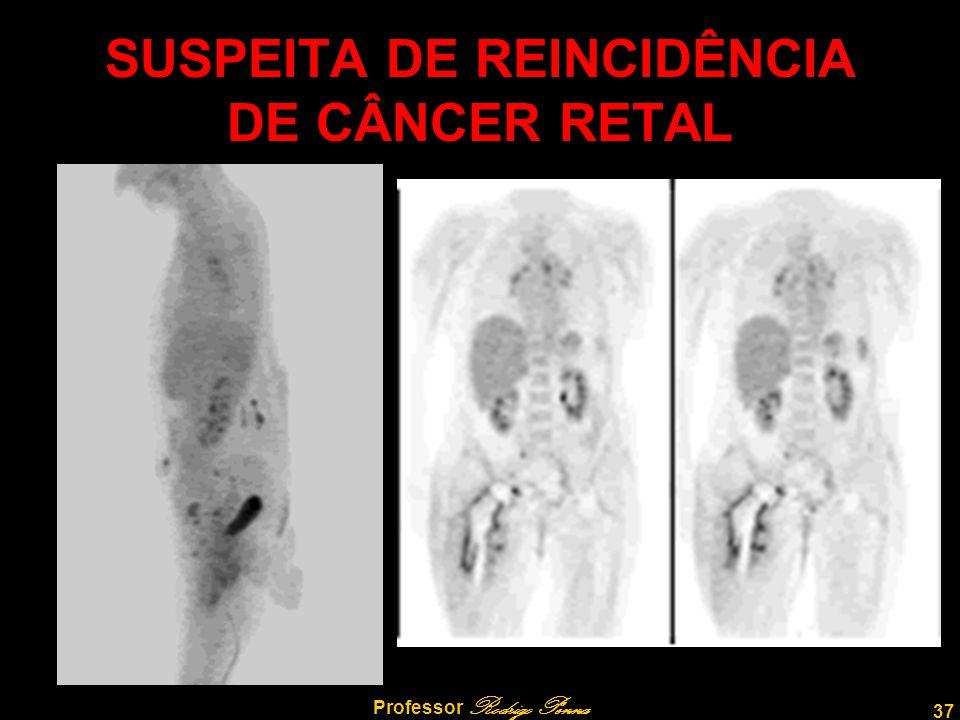 37 Professor Rodrigo Penna SUSPEITA DE REINCIDÊNCIA DE CÂNCER RETAL