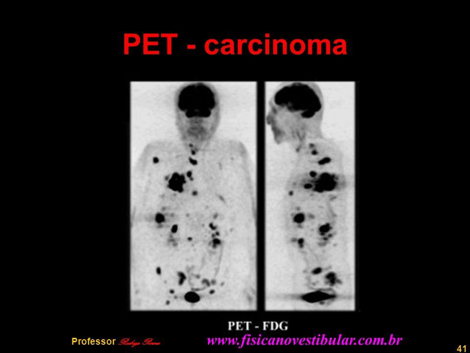 41 PET - carcinoma Professor Rodrigo Penna www.fisicanovestibular.com.br