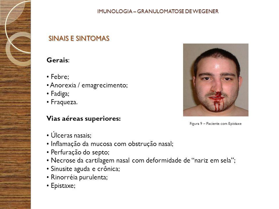 IMUNOLOGIA – GRANULOMATOSE DE WEGENER Gerais: Febre; Anorexia / emagrecimento; Fadiga; Fraqueza. Vias aéreas superiores: Úlceras nasais; Inflamação da