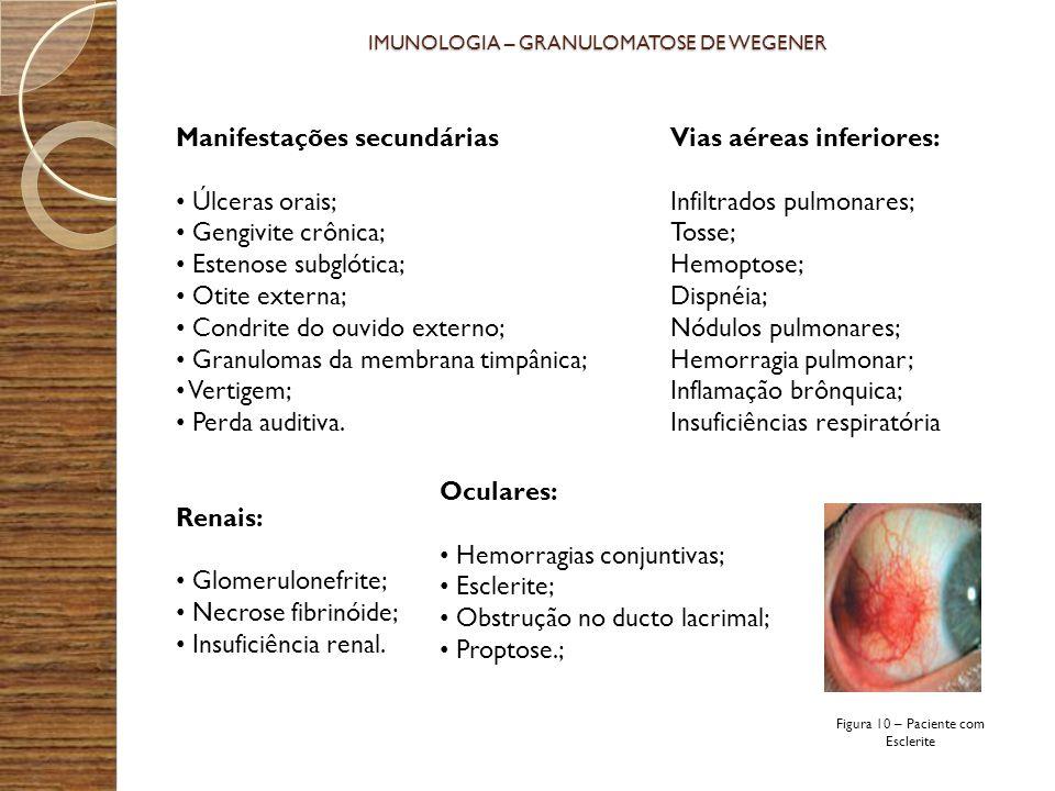IMUNOLOGIA – GRANULOMATOSE DE WEGENER Manifestações secundárias Úlceras orais; Gengivite crônica; Estenose subglótica; Otite externa; Condrite do ouvi