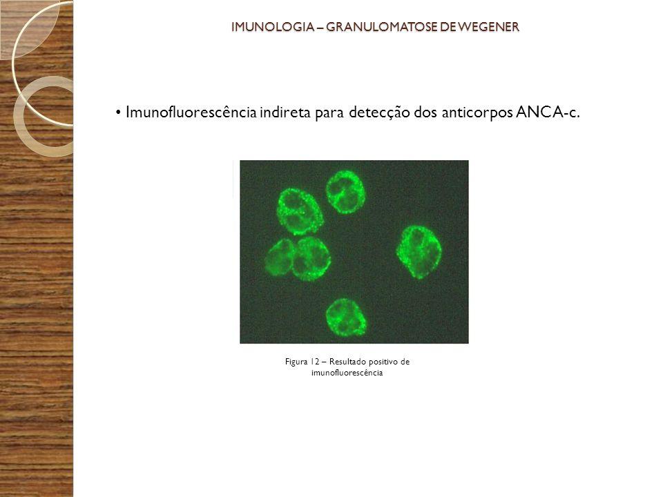 Imunofluorescência indireta para detecção dos anticorpos ANCA-c. IMUNOLOGIA – GRANULOMATOSE DE WEGENER Figura 12 – Resultado positivo de imunofluoresc