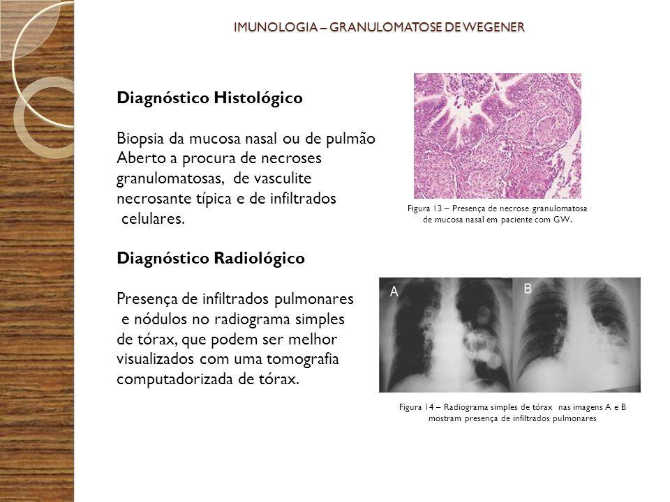 IMUNOLOGIA – GRANULOMATOSE DE WEGENER Diagnóstico Histológico Biopsia da mucosa nasal ou de pulmão Aberto a procura de necroses granulomatosas, de vas