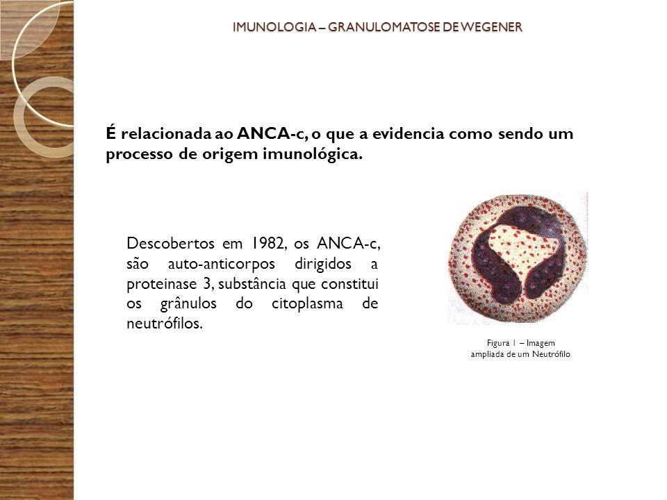 IMUNOLOGIA – GRANULOMATOSE DE WEGENER É relacionada ao ANCA-c, o que a evidencia como sendo um processo de origem imunológica. Descobertos em 1982, os