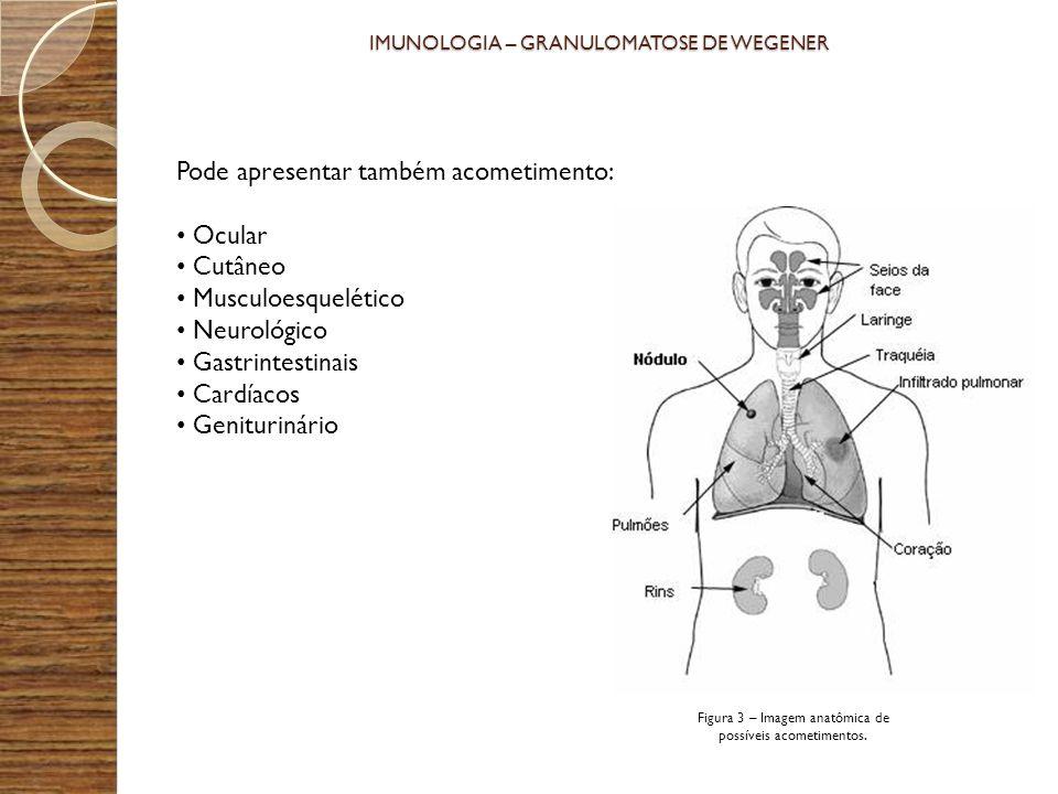 PONTO DE VISTA IMUNOLÓGICO Os mediadores envolvidos nessa patologia são pouco conhecidos.