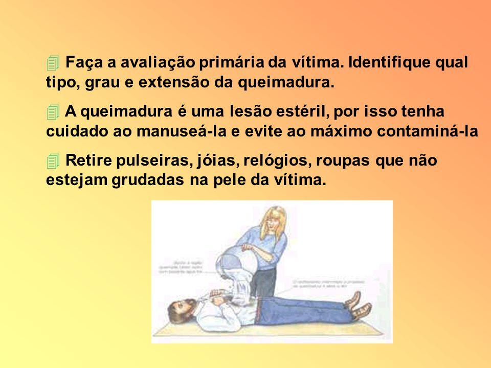 4 Faça a avaliação primária da vítima. Identifique qual tipo, grau e extensão da queimadura. 4 A queimadura é uma lesão estéril, por isso tenha cuidad