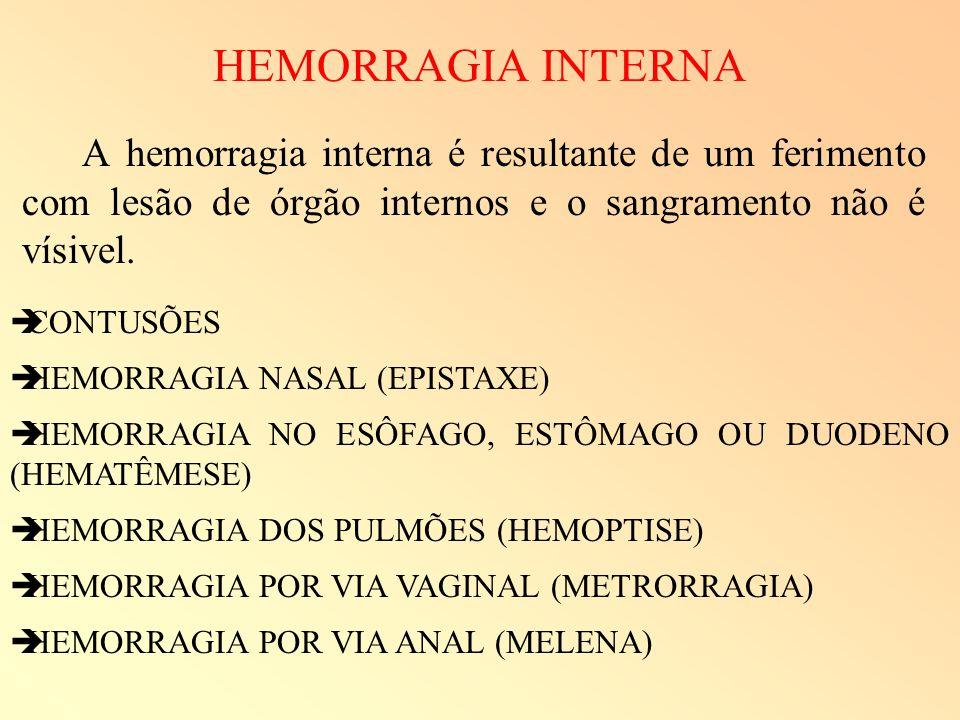 HEMORRAGIA INTERNA A hemorragia interna é resultante de um ferimento com lesão de órgão internos e o sangramento não é vísivel. CONTUSÕES HEMORRAGIA N