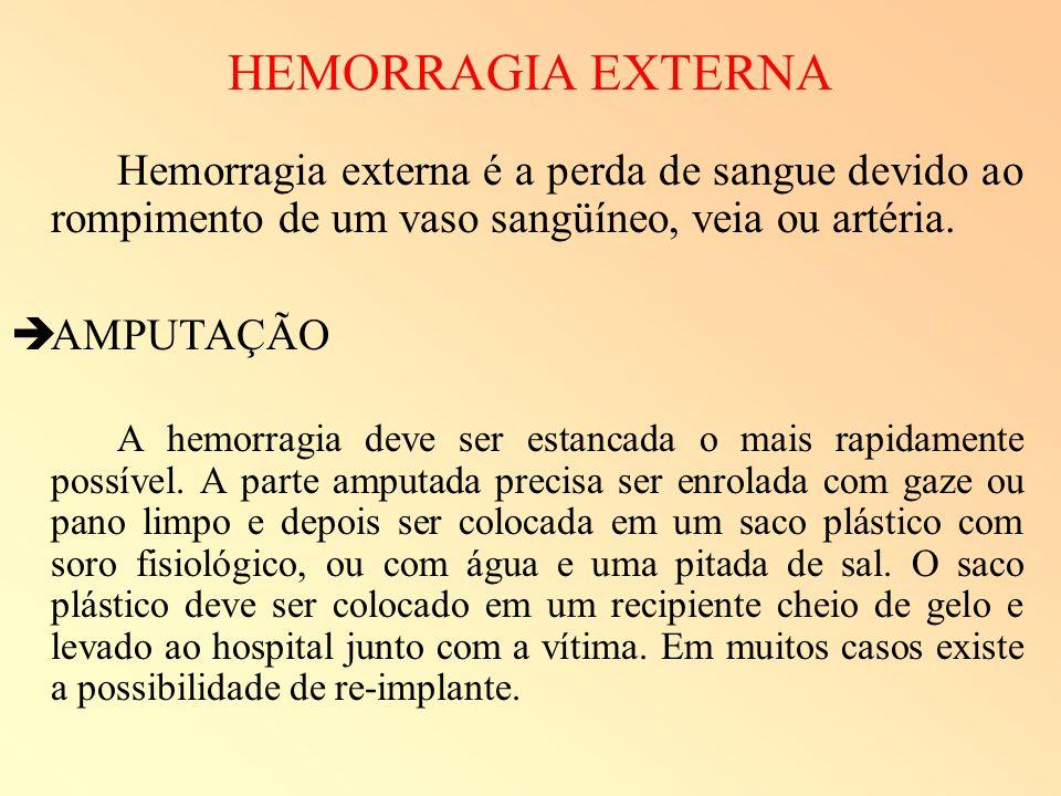 HEMORRAGIA EXTERNA Hemorragia externa é a perda de sangue devido ao rompimento de um vaso sangüíneo, veia ou artéria. AMPUTAÇÃO A hemorragia deve ser