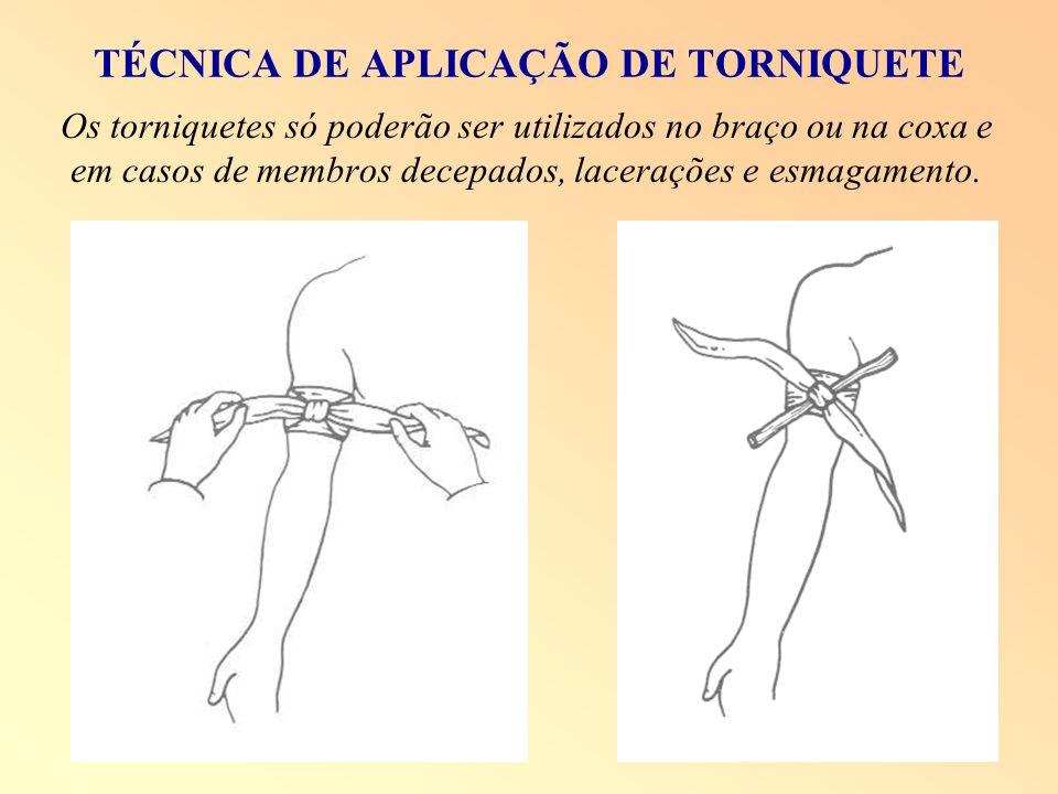TÉCNICA DE APLICAÇÃO DE TORNIQUETE Os torniquetes só poderão ser utilizados no braço ou na coxa e em casos de membros decepados, lacerações e esmagame